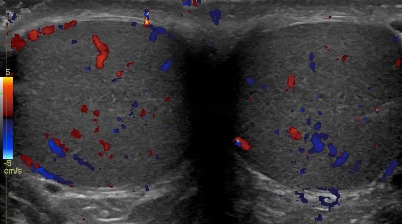 Scrotal / Penile Ultrasound: St. Elizabeths Medical