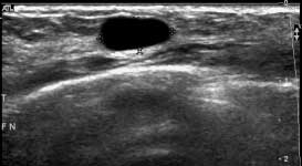 Breast cyst