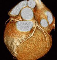 Cardiac CT: St  Elizabeth's Medical Center | Steward Family
