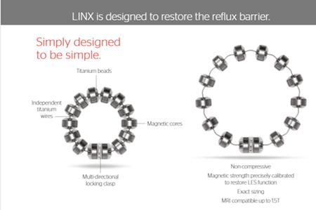 Linx Diagram