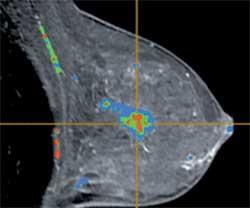 Breast MRI Scan
