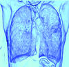 Lung cancer is the leading cause of cancer death in the U.S.