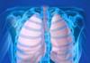 Lung schema